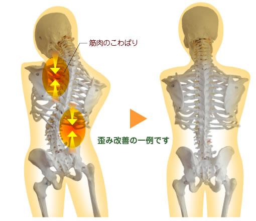 「骨の歪み 筋肉」の画像検索結果